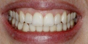 Invisalign After Fixed