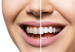Teeth Whitening Sydney Image