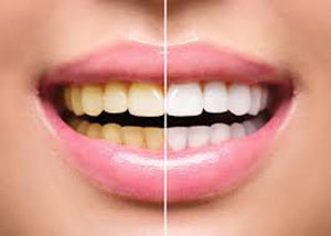 The Best Teeth Whitening Sydney Large