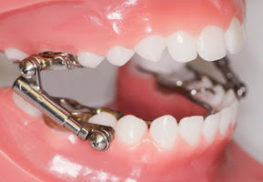 Sparkling Dental Functional Appliances