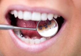 Sparkling Dental Lingual Braces